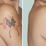 eliminacion-de-tattoo