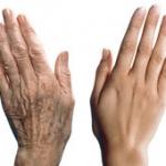 rejuvenecimiento-manos