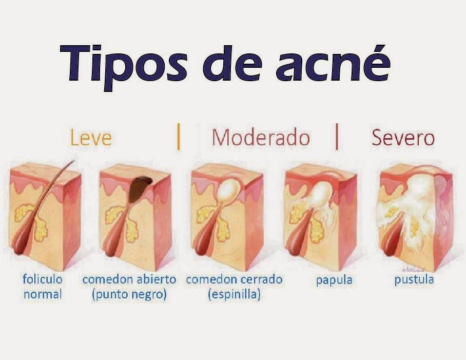 El masaje en la cara del acné
