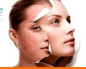 acne-laser