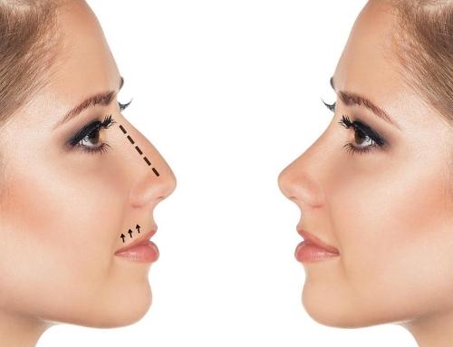 Como perfilar mi nariz sin cirugías