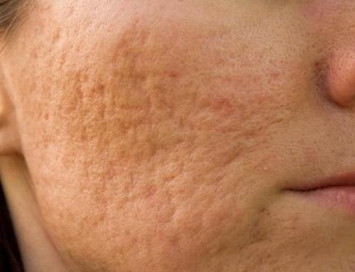 Como eliminar las secuelas de acné