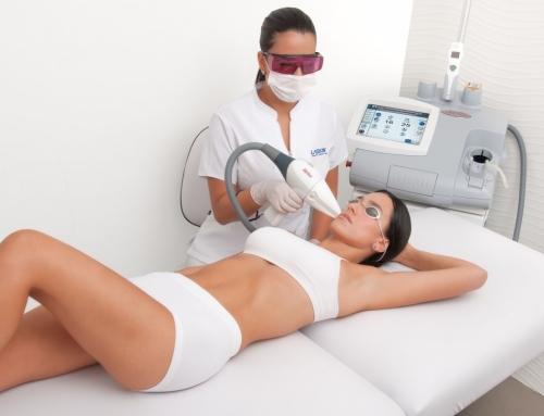 Cuantas sesiones son en depilación láser clínica Lima