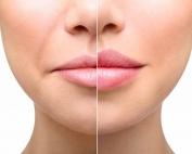 Tratamiento-volumen-labios-con-ácido-hialurónico-1030x494