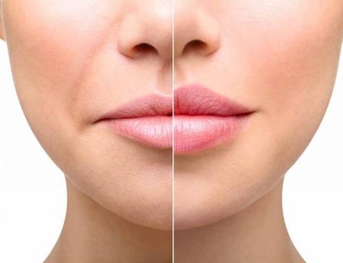 Aumento de labios con ácido Hiaulurónico