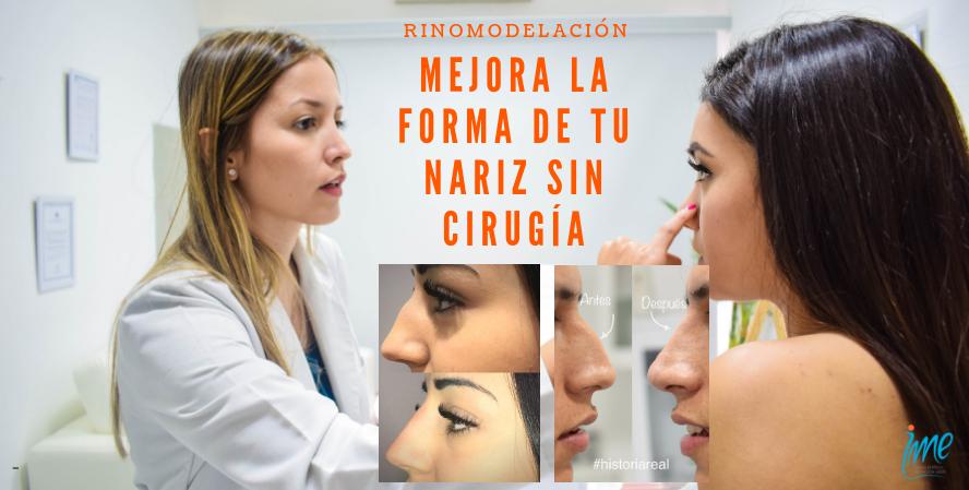 mejora la forma de tu nariz (1)