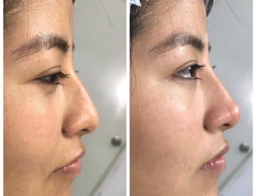 Como arreglar la forma de la nariz sin cirugia